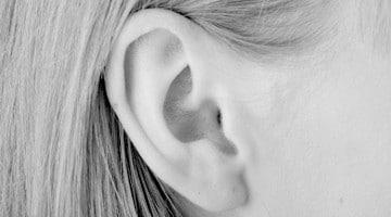 otoplastica orecchio