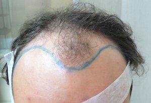 trapianto capelli