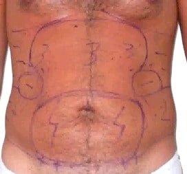 liposuzione-maschile