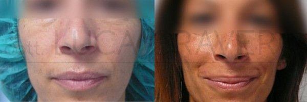 Rinofiller. Correzione del naso senza chirurgia [foto] 5.2