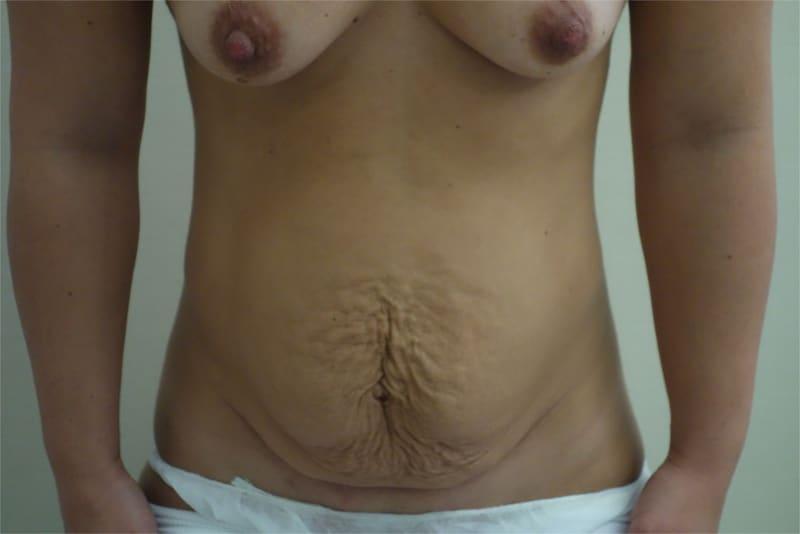 addominoplastica foto 1