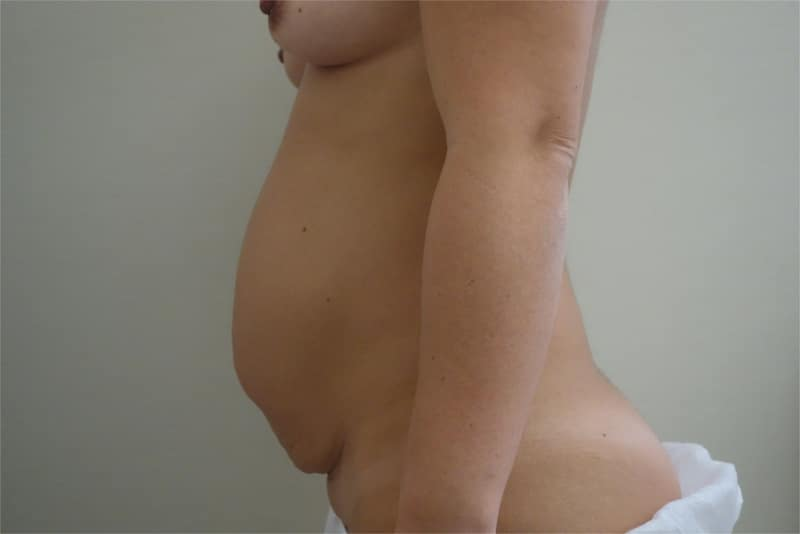 addominoplastica foto 3