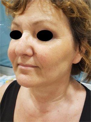 blefaroplastica foto prima e dopo 4