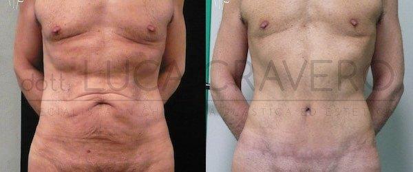 Addominoplastica maschile foto 2.1