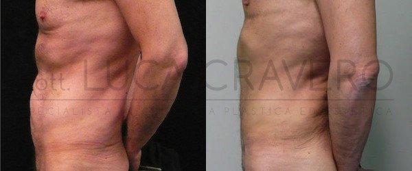 Addominoplastica maschile foto 2.3