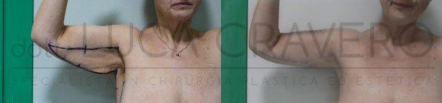 Lifting braccia o brachioplastica 2