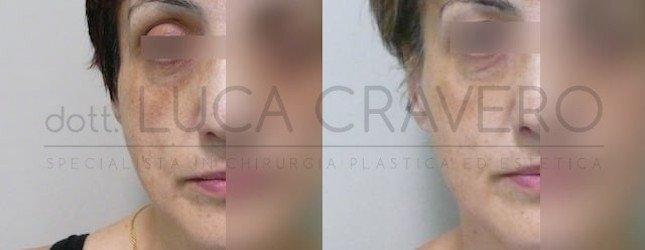 Lipofilling Foto Prima e Dopo 4.1