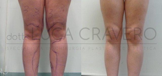 Liposuzione e liposcultura donna foto 4.1