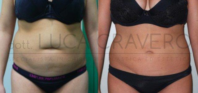 Liposuzione e liposcultura donna foto 5.1