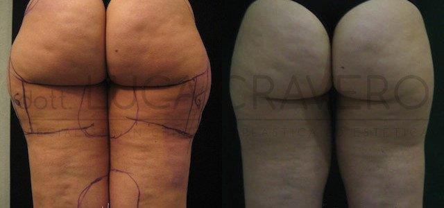 Liposuzione e liposcultura donna foto 6.1