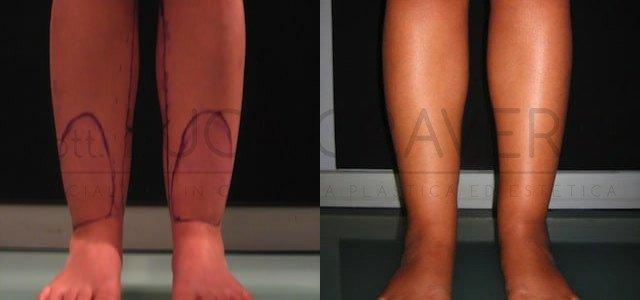 Liposuzione e liposcultura donna foto 9.1