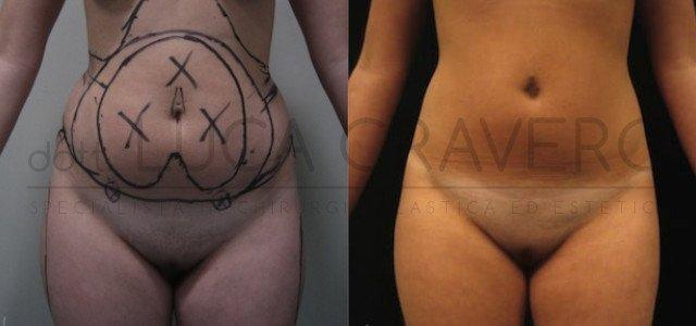 Liposuzione e liposcultura donna foto 9.2