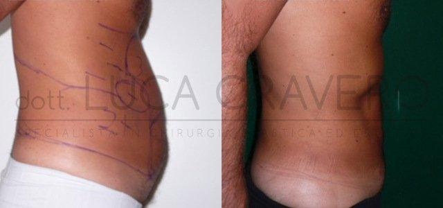 Liposuzione e liposcultura uomo [foto] 2.2