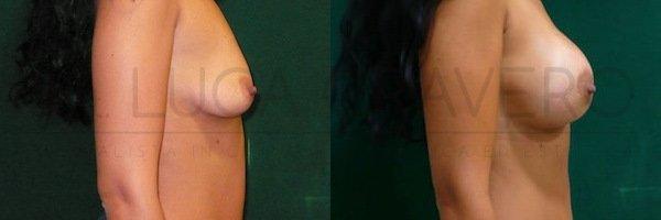 Mastoplastica additiva. Protesi rotonde 1.2