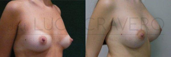 Mastoplastica additiva. Protesi rotonde 2.2