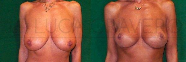 Mastopessi o lifting del seno 2.1