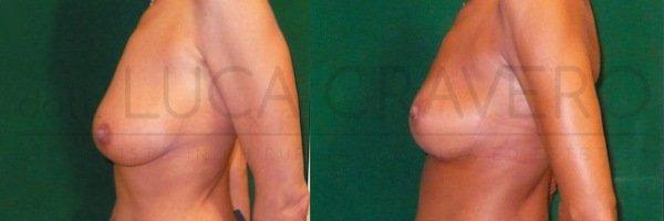 Mastopessi o lifting del seno 2.2