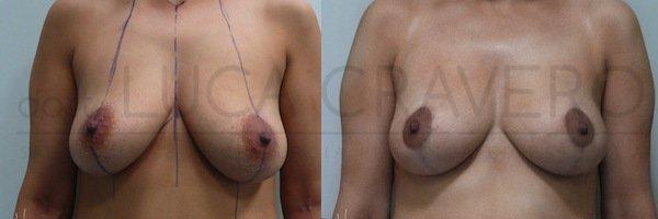 Mastopessi o lifting del seno 3.1