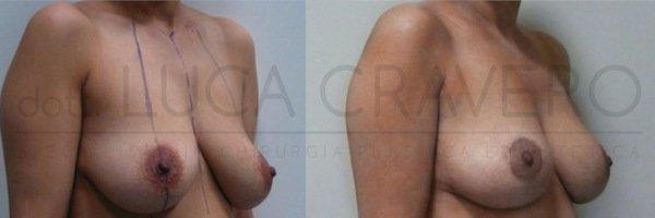 Mastopessi o lifting del seno 3.2