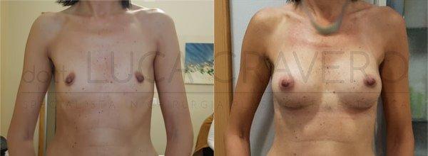 Mastoplastica Additiva. Protesi anatomiche 1.1