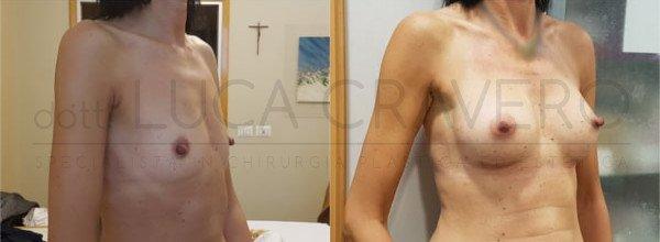 Mastoplastica Additiva. Protesi anatomiche 1.2