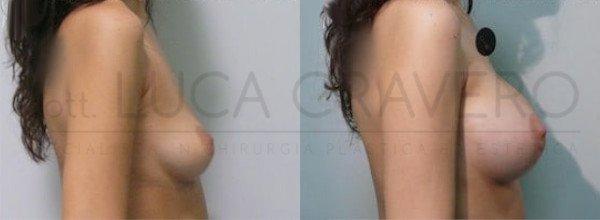 Mastoplastica Additiva. Protesi anatomiche 10.3