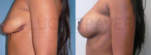 Mastoplastica Additiva. Protesi anatomiche 12.2