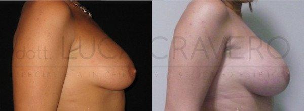 Mastoplastica Additiva. Protesi anatomiche 2.2