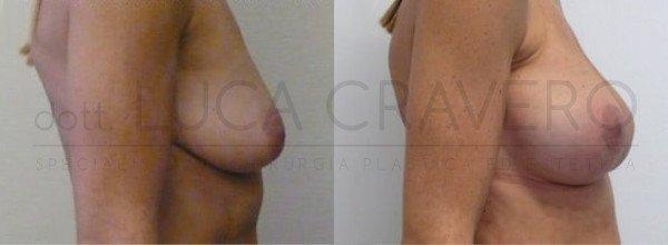 Mastoplastica Additiva. Protesi anatomiche 5.4