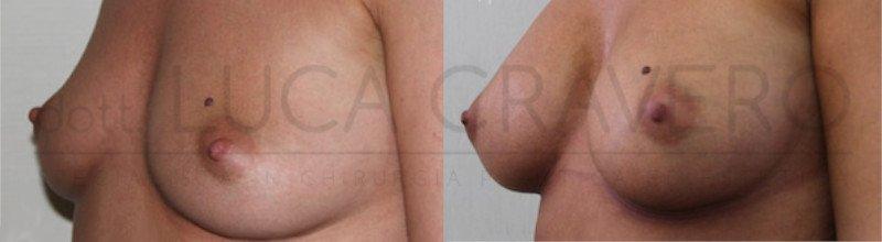 Mastoplastica Additiva. Protesi anatomiche 6.2