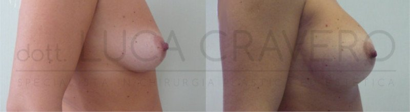 Mastoplastica Additiva. Protesi anatomiche 8.3