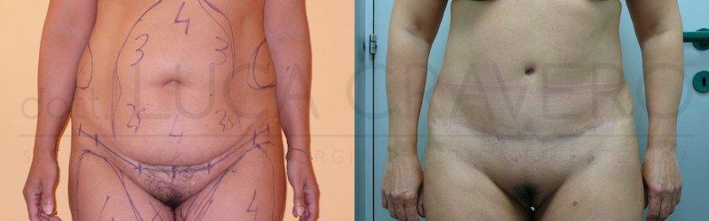 Addominoplastica 3 ridurre lievemente visibilita cicatrice e scalino cicatrice fianco destro 1