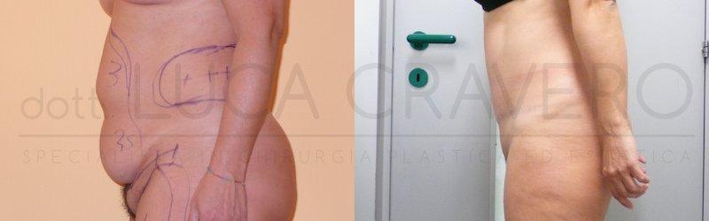 Addominoplastica 3 ridurre lievemente visibilita cicatrice e scalino cicatrice fianco destro 2