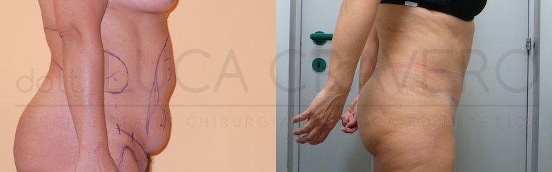 Addominoplastica 3 ridurre lievemente visibilita cicatrice e scalino cicatrice fianco destro 3