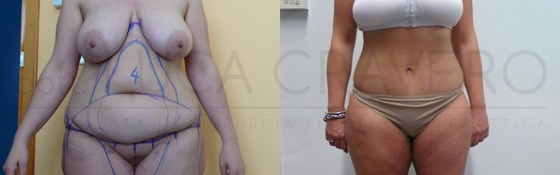 Addominoplastica 5 da ridurre visibilita buchi delle gambe nei post 1