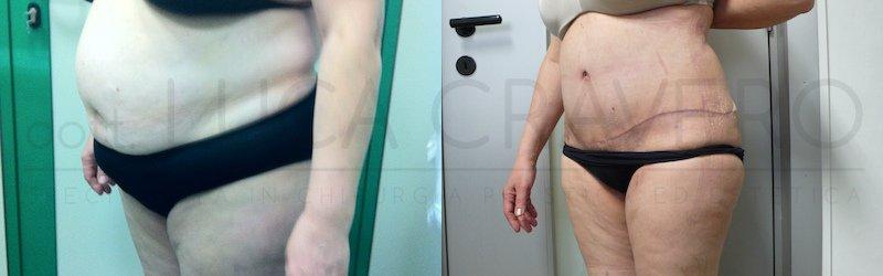 Addominoplastica ridurre visibilita cicatrice, segni e piega fianco sinistro 3