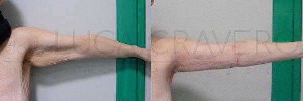 Lifting braccia 20.10.18 1.1