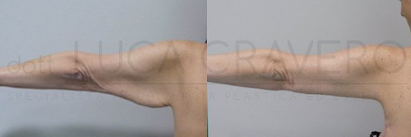 Lifting braccia 20.10.18 1.2