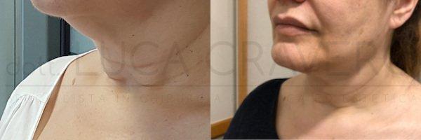 Lifting collo prima e dopo 2 - Dr. Cravero
