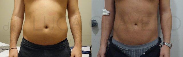 Liposuzione addome uomo con bodytite (Scultura muscolare) 25.10.18 1