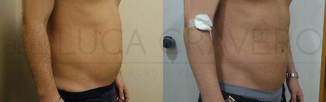 Liposuzione addome uomo con bodytite (Scultura muscolare) 25.10.18 2