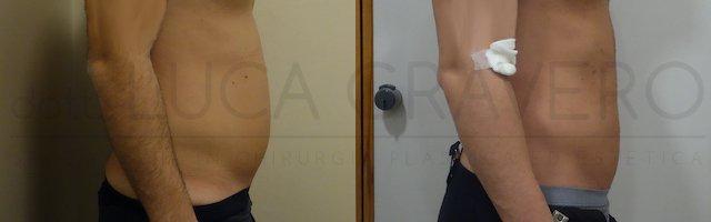 Liposuzione addome uomo con bodytite (Scultura muscolare) 25.10.18 3