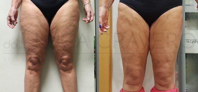 Liposuzione gambe con bodytite 1