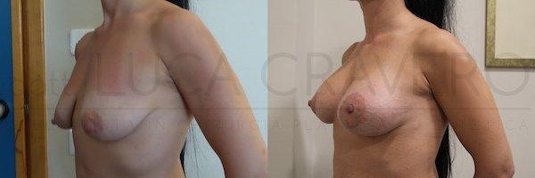 Mastopessi con protesi anatomica 245 cc retromuscolare. Proiezione iperelevata. 21.10.18 2