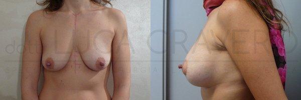 Mastopessi con protesi anatomica 260 cc retromuscolare. 21.10.18 2