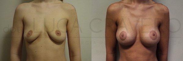 Mastopessi con protesi anatomica 320 cc retromuscolare poliuretano. Proiezione elevata. 21.10.18 1