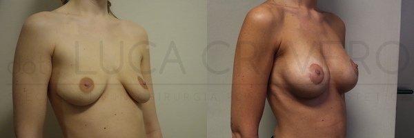 Mastopessi con protesi anatomica 320 cc retromuscolare poliuretano. Proiezione elevata. 21.10.18 2