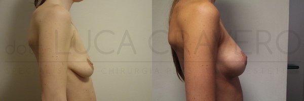 Mastopessi con protesi anatomica 320 cc retromuscolare poliuretano. Proiezione elevata. 21.10.18 3
