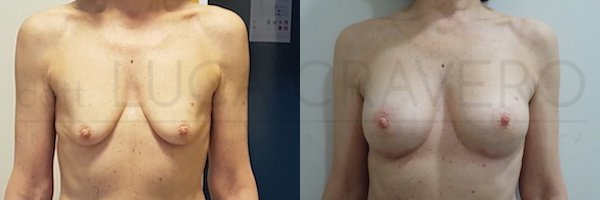 Mastoplastica additiva con protesi anatomica 225 cc in poliuretano. Proiezione moderata. 1