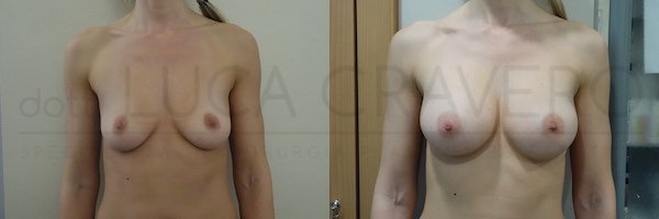 Mastoplastica additiva con protesi anatomica 330 cc in poliuretano. Proiezione moderata. 1